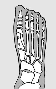 Osteotomia de Sarf y Akin