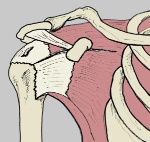 Figura 4. Rotura parcial del tendón