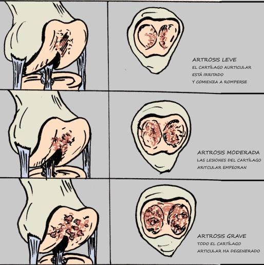 artrosis evolución 2
