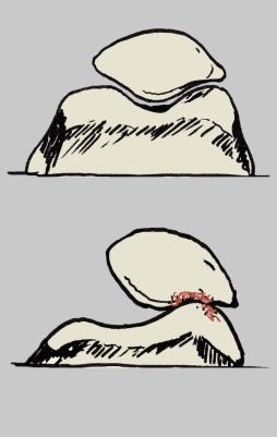Roce rótula